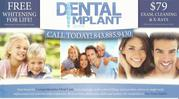 Dental implants Mt Pleasant sc
