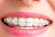 Teeth Straightening - Easy dental Al Karama